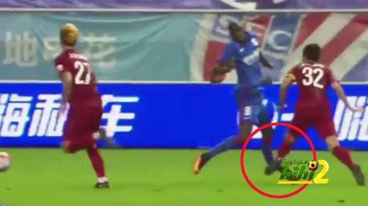 صورة : ديمبا با يدخل قائمة أكثر الاصابات رعبا في كرة القدم coobra.net