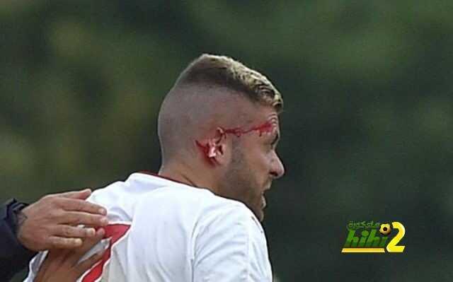 صورة : قطع أذن مينيز يمنحه لقب صاحب أسوأ أول ظهور للصفقات الصيفية coobra.net